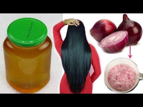 Aceite de Cebolla Casero:Crecimiento extremo del cabello en 7 Dias  Detener la Caida#2fashionbycarol