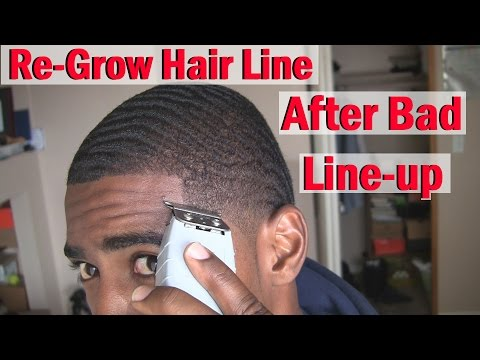 How to ReGrow your Hairline Naturally: After Bad line up/Haircut!