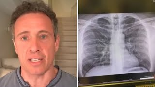 Chris Cuomo Shares Chest X-Ray Amid COVID-19 Battle