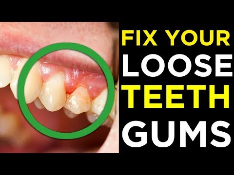 FIX YOUR LOOSE TEETH and GUMS | Amazing Home Remedies To Fix Loose And Shaky Teeth