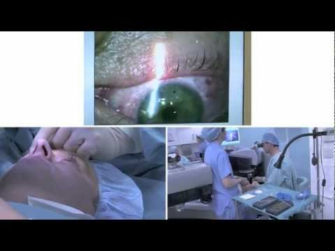 Real Time Bilateral LASIK Surgery with the Refractive Suite from Alcon WaveLight