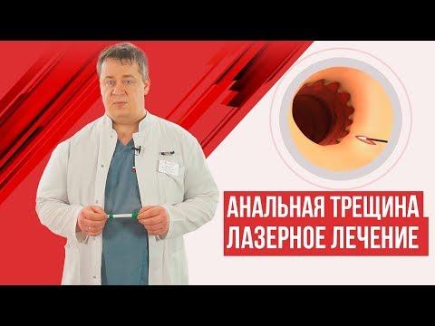 Анальная трещина - лазерное лечение
