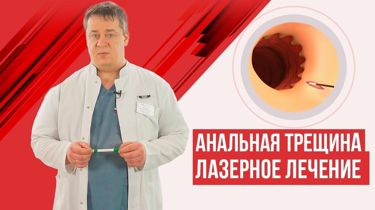 Анальная трещина — лазерное лечение