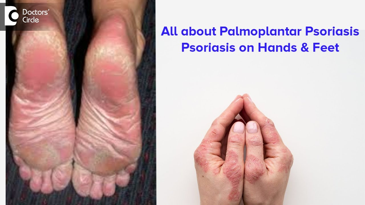 psoriasis on feet and hands