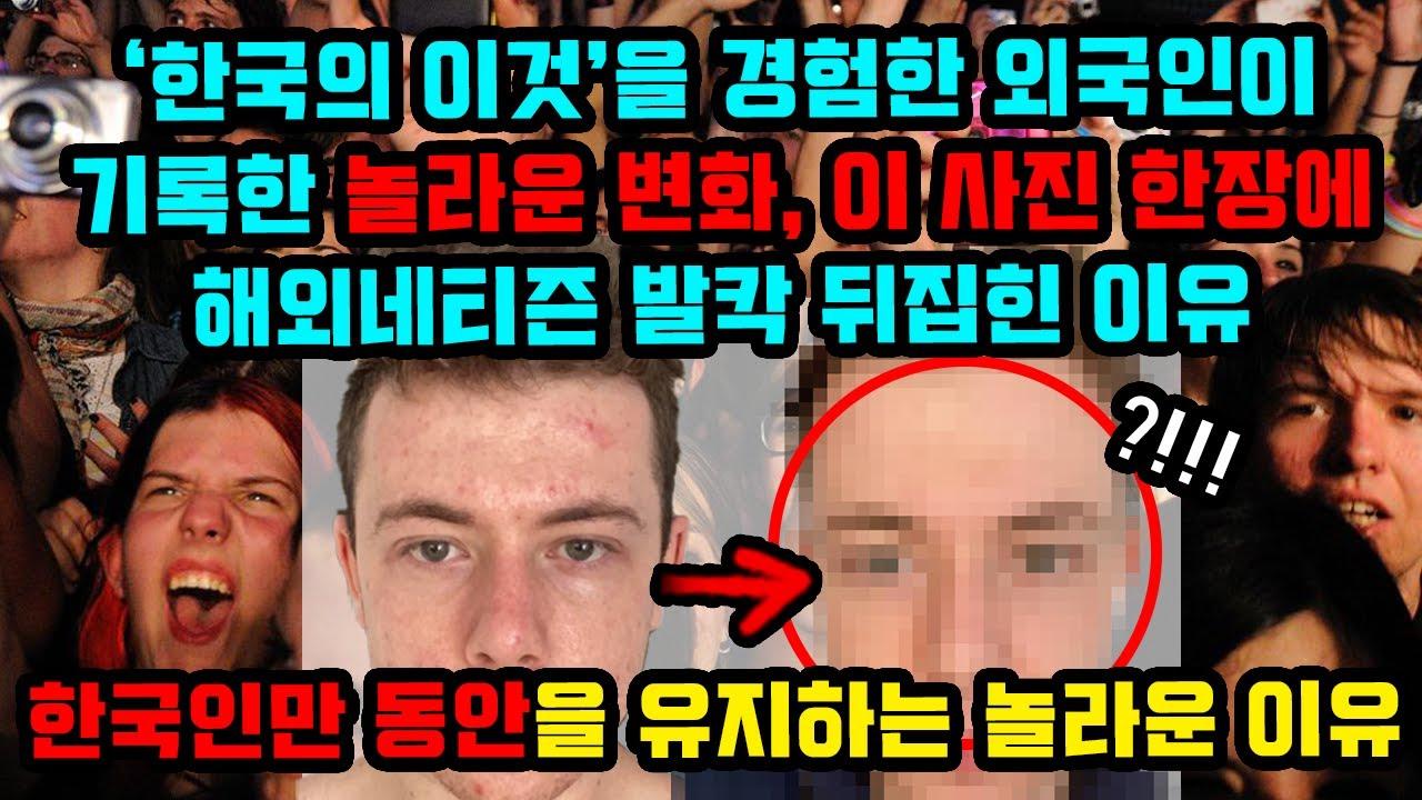 '한국산'을 경험한 한 외국인에게 찾아온 놀라운 변화, 사진 한장에 해외네티즌 발칵 뒤집힌 이유