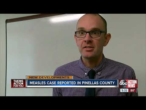 Measles case confirmed in Pinellas County