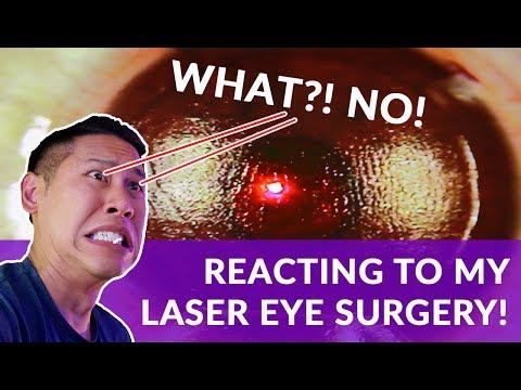 WARNING: GRAPHIC | FULL LASIK Laser Eye Surgery Procedure [Reaction] Disgusting & Fascinating Tech!