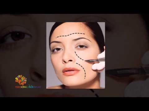 Phi Thanh Vân và mặt trái của phẫu thuật thẩm mỹ - Vui Sống Mỗi Ngày [VTV3 – 13.10.2015]