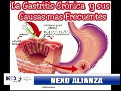 Cuidados de la gastritis