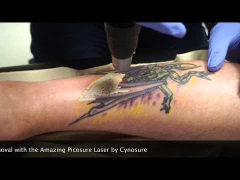nashville laser removal the picosure