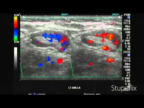 Left axillary lymph node enlargement in breast cancer ...