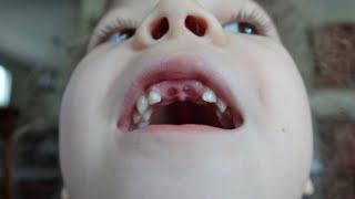 We Got A Tooth