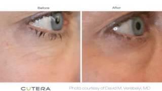 Laser Genesis procedure results