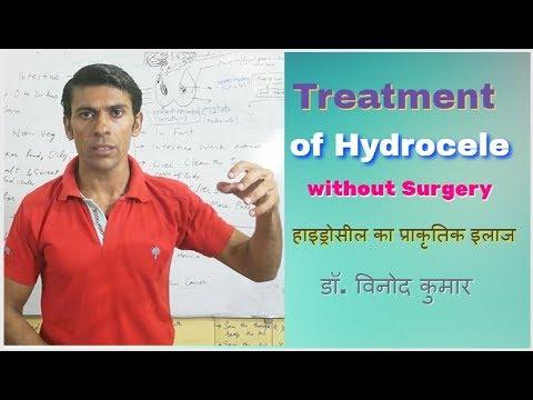 Treatment Of Hydrocele Without Surgery | Hindi - YouTube