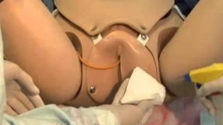 Repeat youtube video Taponamiento uterino con balón