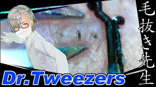 346 [200x Zoom] What is left in the pores? Dr. tweezers 毛抜き先生の角栓や毛根