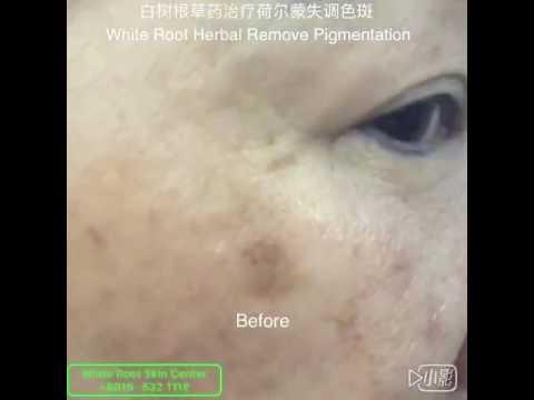 祛斑Remove Pigmentation-WHITE ROOT Skin Center