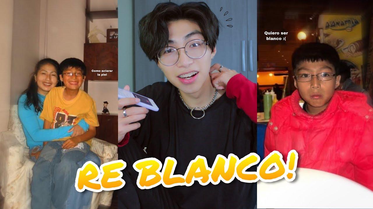 Aclara Tu Piel Como La De Un Coreano No Lo Hagas Mucho Porque Aclara Demasiado Fabrizio Space Youtube