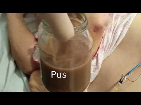 Абсцесс - лечение болезни. Симптомы и профилактика