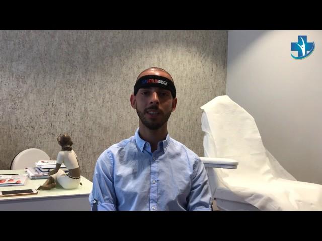 Trasplante Capilar Turquía - Testimonio por Julio - Dra. Oyku Celen