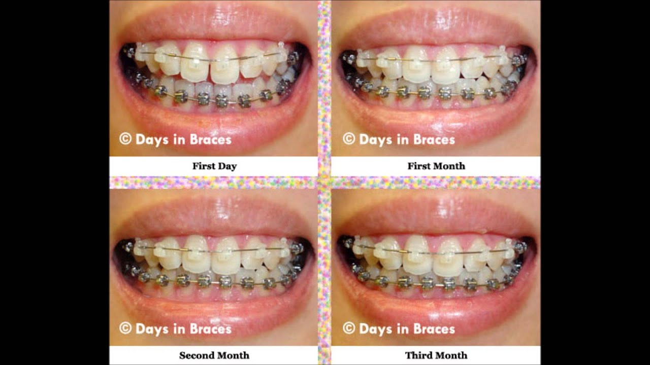 Braces Invention - YouTube