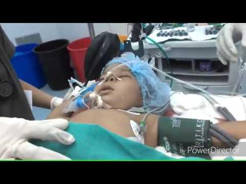 Caudal epidural