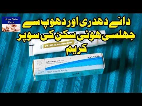 Medicated Acne Rashes Treatment Cream For Babies Dhadri Ky Lye Azmoda Cream Youtube