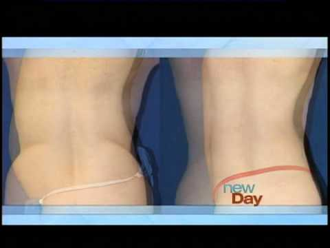 Liposuction:  Athenix Body Sculpting compares Micro-Body Contouring to Liposuction