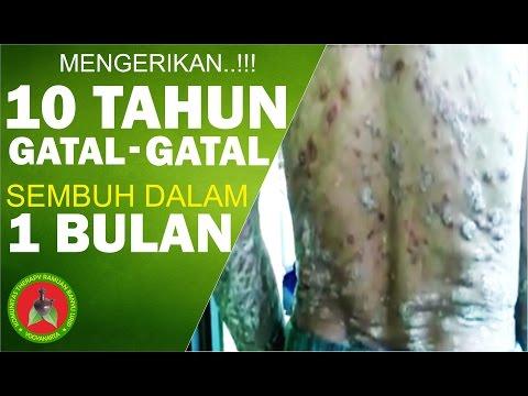 MENGERIKAN !!! 10 TAHUN GATAL-GATAL DI SEKUJUR BADAN !! SEMBUH DALAM 1 BULAN THERAPY BANYU URIP