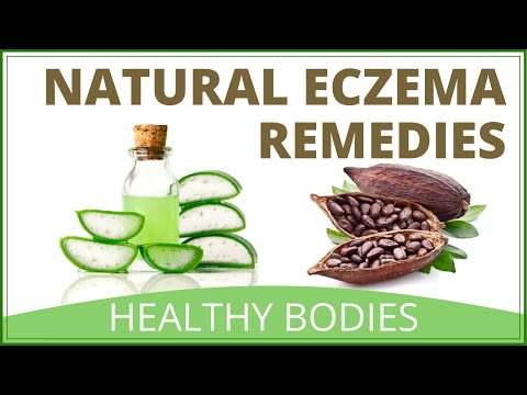 How To Treat Eczema Naturally | Top Home Remedies For Eczema
