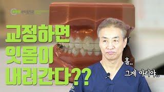 치아교정 하면 잇몸이 내려간다!?