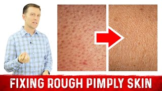 What Does Rough Pimply Skin (Chicken Skin) Mean?