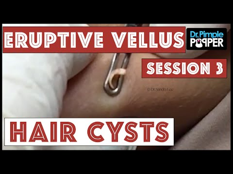 Extracting Eruptive Vellus Hair Cysts, Session 3
