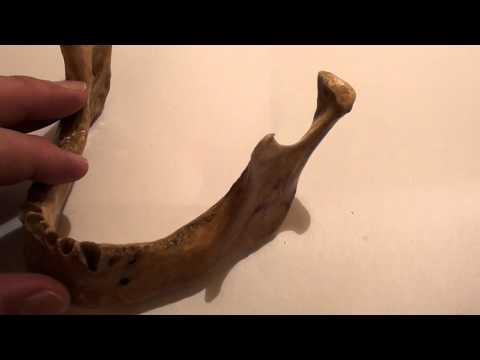 Anestezia nervului alveolar inferior - calea endobucala