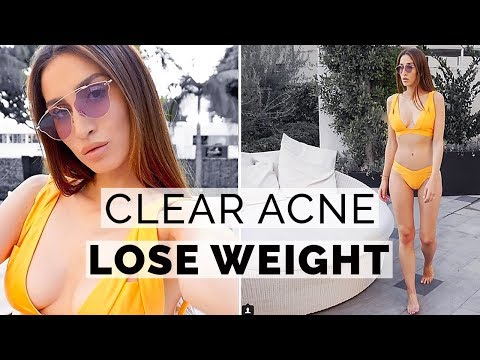 18 Shocking Secrets to Lose Weight and Clear Acne Naturally