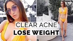 hqdefault - Lost Weight Now I Have Acne
