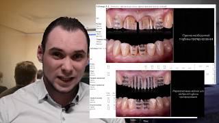 Как правильно  препарировать зубы.