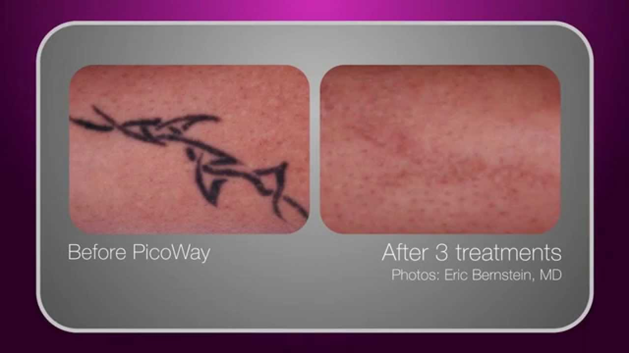 Reset tattoo removal with the picoway laser in chicago il for Laser tattoo removal chicago