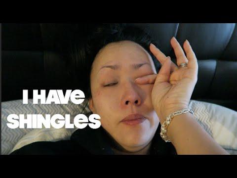I HAVE SHINGLES?! | VLOG