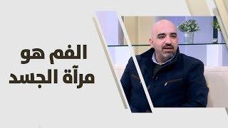 د. خالد عبيدات - الفم هو مرآة الجسد