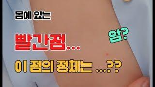 #3. [피부] 몸의 빨간 점, 양성종양인지 아셨나요?…