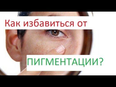 Пигментные пятна на лице. Причины, как убрать?