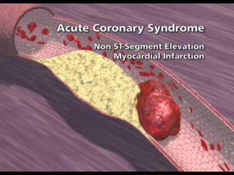Overview of Coronary Artery Disease