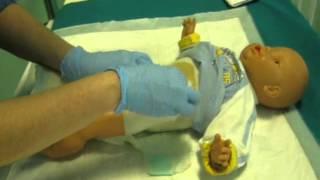 La gestione delle enterostomie intestinali in età pediatrica