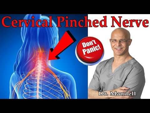 How to Overcome Cervical Pinched Nerve & Radiculopathy (Don't Panic) - Dr. Alan Mandell, DC