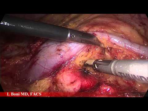 Laparoscopic Living Donor Left Nephrectomy for Transplant