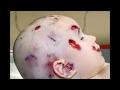 Capture de la vidéo Autopsy A Mothers Instinct New York State Medical Examiner - 2017
