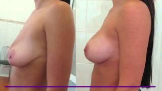 Увеличение груди киев подтяжка груди силикон пластика(Пластика груди Увеличение груди Киев (эндопротезирование молочных желёз, или увеличивающая маммопастика)..., 2011-10-13T17:39:49.000Z)