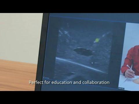 SonoStreamer - Collaborative Needle Interventions