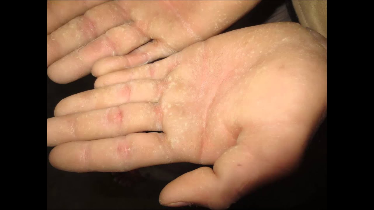 Pitted Keratolysis Hands